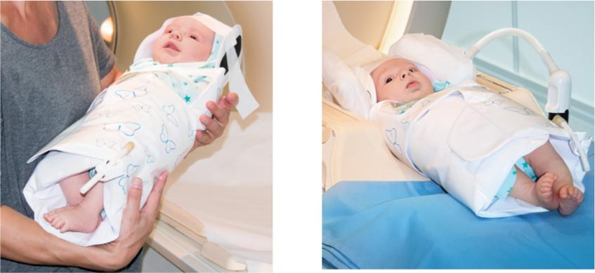 Abb. 5 und 6: Stillen oder Schoppengabe durch Mutter. Danach Neugeborenes in der MRT Spule platzieren.